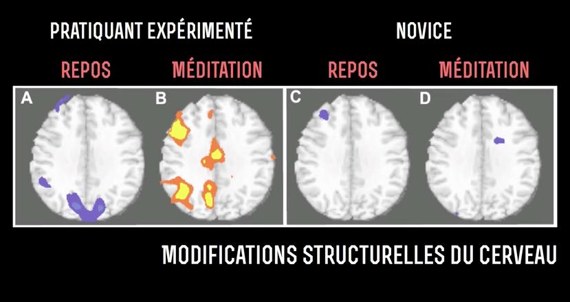 modification du cerveau par la méditation