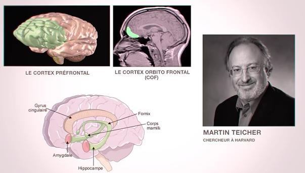 Martin Teicher